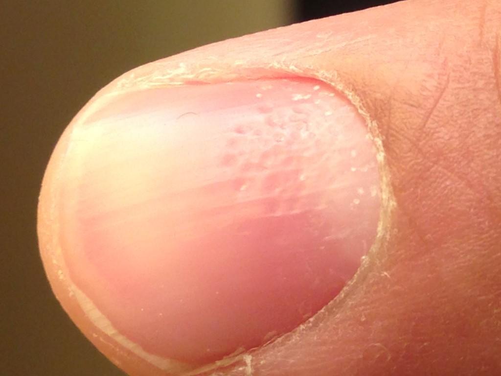 Aravind's Fingernail