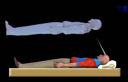 Silver Cord Attachement to body