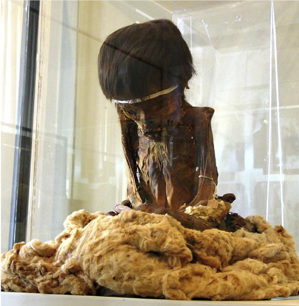 Nazca Paraplegic Child Mummy